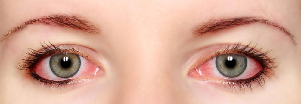 oculista-roma-uveiti-centro-diagnostico-oculistico-didomenicoi